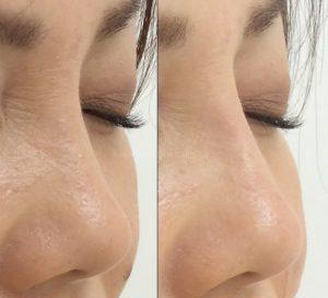 ヒアルロン酸ならこんなに自然に鼻を高くできます