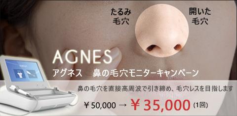アグネス鼻の毛穴