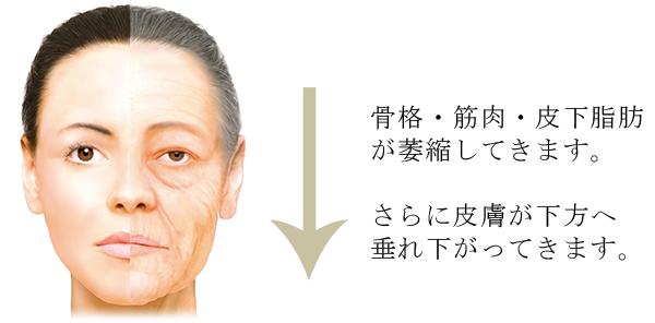 立体構造の老化によって、しわやたるみが出現します。