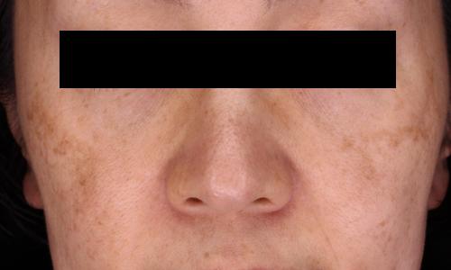 肝斑イメージ