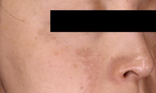 肝斑治療前