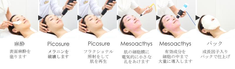 ピコシュアによる肌再生プログラム「ヒルズフェイシャル®」の流れ